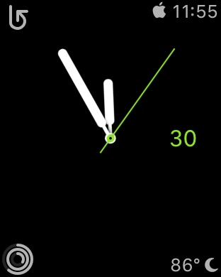 Show us your Apple Watch face!-img_3932.jpg